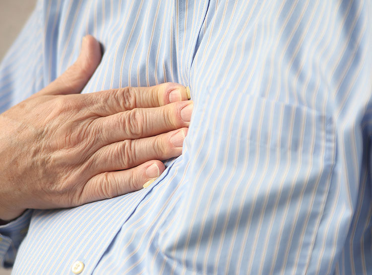 Reflux After Bariatric Surgery