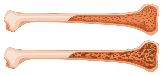 Osteoporosis After Weight Loss Surgery